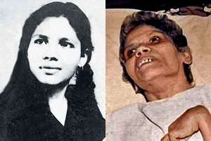 Mumbai nurse Aruna Shanbaug in coma for 42 years after being raped dies at 66. Aruna Shanbaug, a former nurse who lived in a vegetative state for the past 42 years after being brutally sexually assaulted at the KEM Hospital, in Mumbai.